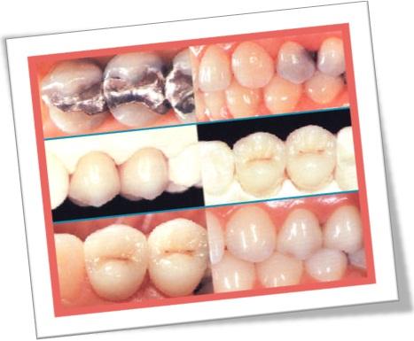 dentista problemas odontológicos, restauração, deterioração, placa, cárie