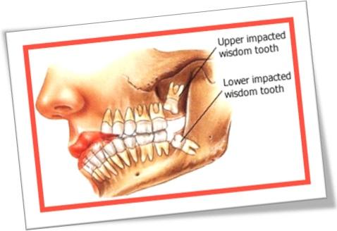 upper and lower impacted wisdom tooth teeth dentes sisos superior e inferior impactados