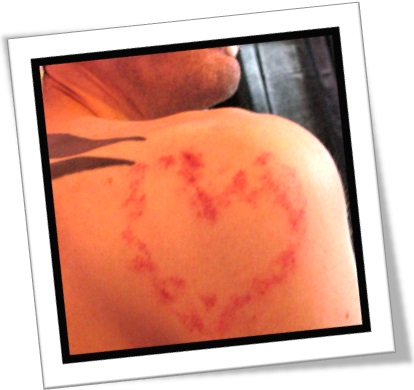 hickey, love bite, chupão, beijo, marca no pescoço, namorado