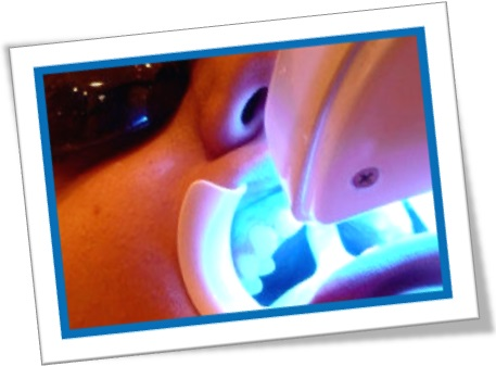 laser teeth whitening, clareamento dental a laser, dentista, odontologia